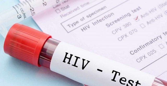 CTA de Picos já registrou quatro casos de HIV em 2020