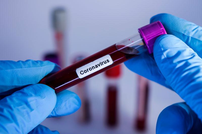 Contaminação por novas cepas do coronavírus cresce entre jovens no Piauí